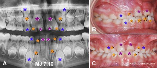 Problèmes d'éruption dentaire anticipés sur une radiographie panoramique montrant la différence de grosseur entre les dents de lait et les dents définitives.