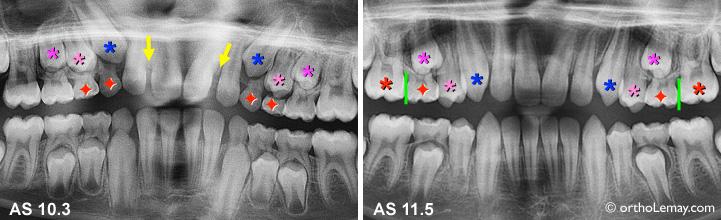 Extractions pilotées ou sélectives ayant permis d'améliorer l'éruption des dents.