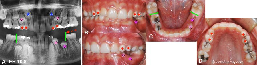 Extractions pilotées, extractions sélectives et utilisation d'un mainteneur d'espace en orthodontie pour aider l'éruption dentaire et minimiser une malocclusion.