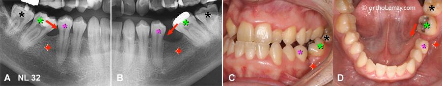 Extraction des premières molaires inférieures et bascule des autres molaires. Les dents basculées peuvent être redressées en orthodontie.