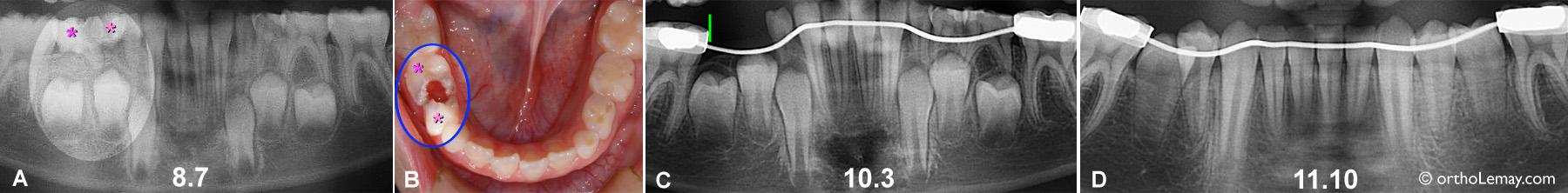 Utilisation d'un mainteneur d'espace pendant l'éruption des dents.
