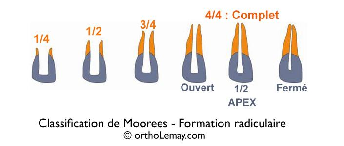 La classification de degré de formation ou développement des racines dentaires d'après Moorees (1963).