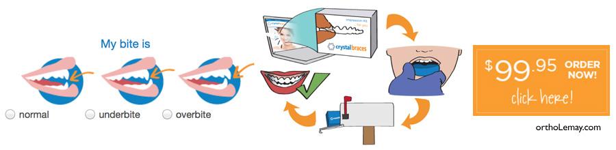 orthodontie à distance, orthodontie maison. Certaines compagnies offrent de vous aider à vous traiter vous-même avec des aligneurs transparents que vous recevez par la poste!
