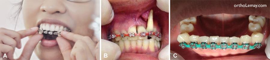 Exemples de problèmes possibles avec des broches maisons (DIY braces) ou de l'auto-orthodontie.
