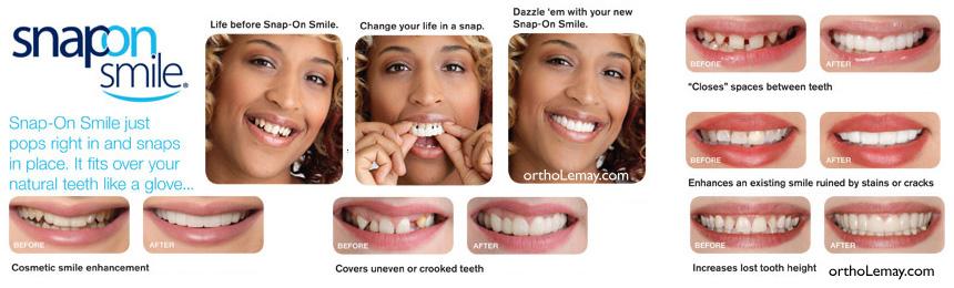 """Appareil amovible snap-on smile pour camoufler des dents croches et """"remplacer"""" un traitement d'orthodontie?"""