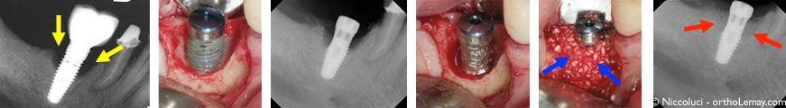 Péri-implantite autour d'un implant dentaire