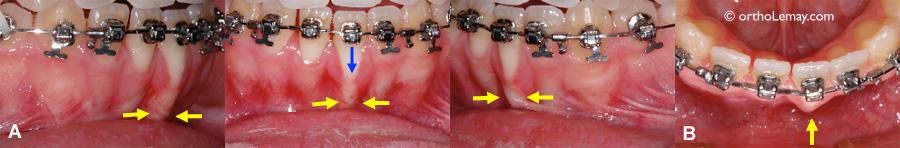 Racine trop basculée en orthodontie. Torque dentaire