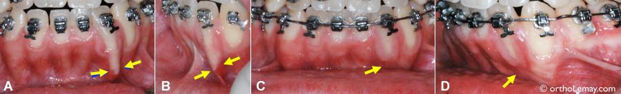 Correction d'une racine trop inclinée qui sort partiellement de l'os en orthodontie.