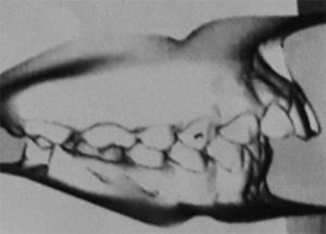 malocclusion dentaire classe 2 division 1 avec surplomb vertical et horizontal excessifs chez un adolescent.