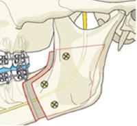 chirurgie orthognathique avancement mandibulaire orthodontie
