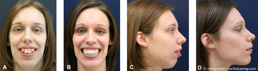 Traitement d'orthodontie et chirurgie orthognathique pour corriger une sévère malocclusion chez un adulte. Changement dans le profil du visage.