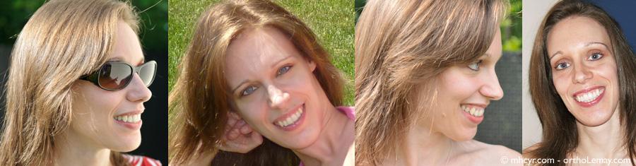 Changements esthétiques du visage suite à une chirurgie orthognathique et un traitement dort chez une adulte.
