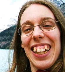 Photo de Marie-Hélène Cyr avant son traitement d'orthodontie et de chirurgie orthognathique complexe.