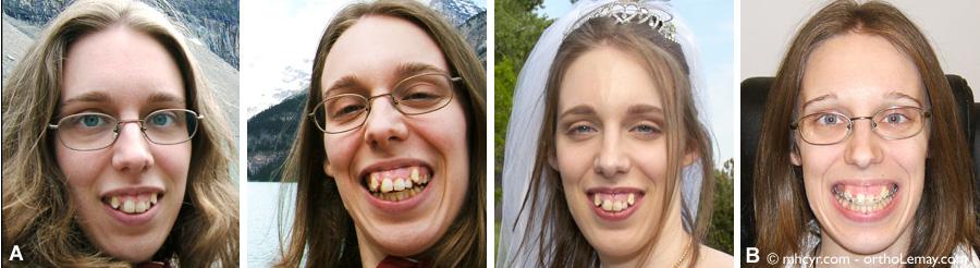 Traitement d'orthodontie et chirurgie orthognathique pour corriger une sévère malocclusion chez un adulte.