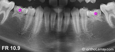 Anodontie de prémolaires et progression de la résorption des racines des molaires temporaires.