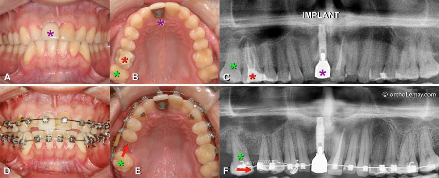 Solutions esth tiques pendant l 39 orthodontie for Appareil detartrage dentaire maison