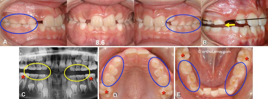Bruxisme et usure dentaire chez un garçon de 8 ans. Traitement d'orthodontie à l'aide d'une plaque de disclusion