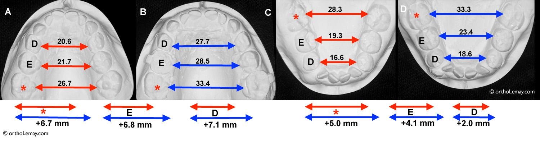 Expansion maxillaire et mandibulaire chez un enfant souffrant d'apnée du sommeil