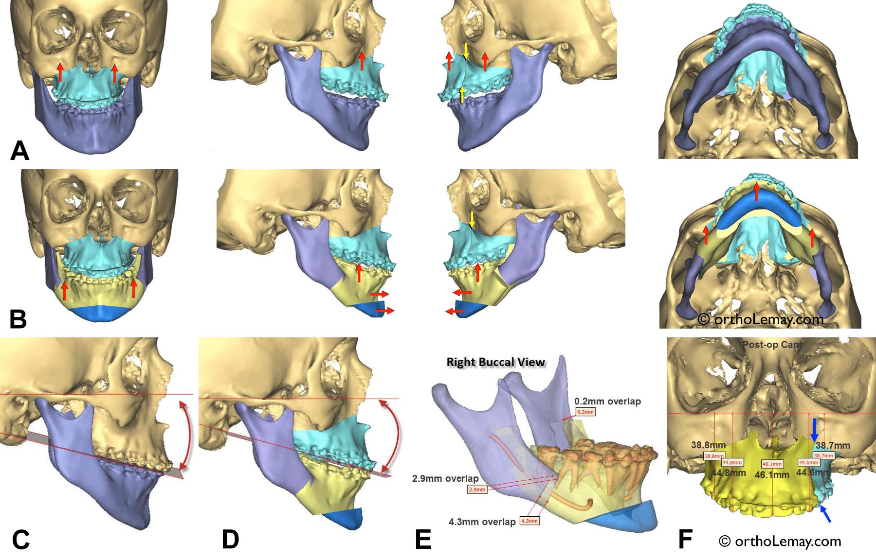 Simulation informatique 3D d'une correction chirurgicale complexe des deux mâchoires. (A) Vue de face, des côtés et inférieure des mâchoires après la préparation orthodontique mais avant la chirurgie. La mandibule et le maxillaire supérieur sont de couleurs différentes. (B) Simulation faite par le chirurgien maxillo-facial à l'aide d'une radiographie 3D (TVFC) et du logiciel de simulation. Chaque couleur représente une coupe qui devra être faite dans la mâchoire. (C) Mâchoires avant la chirurgie. (D) Calcul de la rotation mandibulaire qui résultera des mouvements chirurgicaux. (E) Détails de la chirurgie mandibulaire indiquant au chirurgien la position du nerf mandibulaire et la position de chaque segment de mâchoire à une fraction de millimètre près. (F) Vue de face du maxillaire supérieur et des détails des mouvements chirurgicaux. Il serait impossible de faire une telle planification chirurgicale sans ces nouvelles technologies. Simulation, gracieuseté du Dr Gaétan Noreau, chirurgien maxillo-facial, Sherbrooke. © 2016.