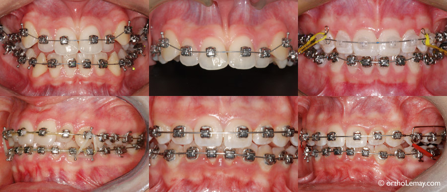 Bague cassee orthodontie