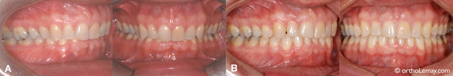 grincement dents nuit