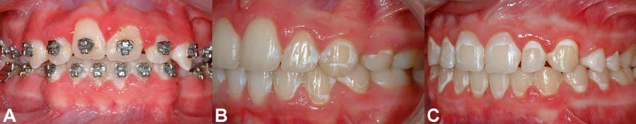 Hygiène Dentaire Et Buccale En Orthodontie Bücco