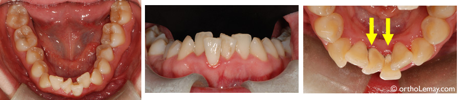 Souvent Hygiène dentaire et buccale en orthodontie | Bücco GS76