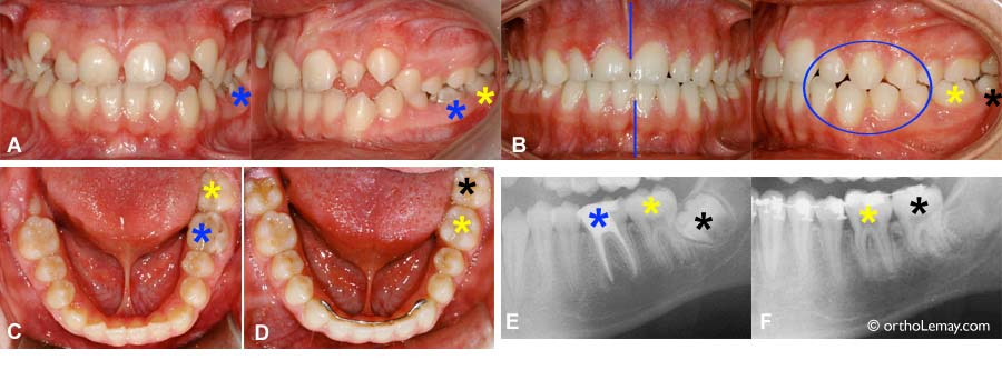 How is an Invisalign ® orthodontic treatment performed?