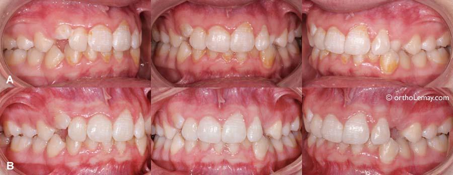 mauvaise hygiène dentaire