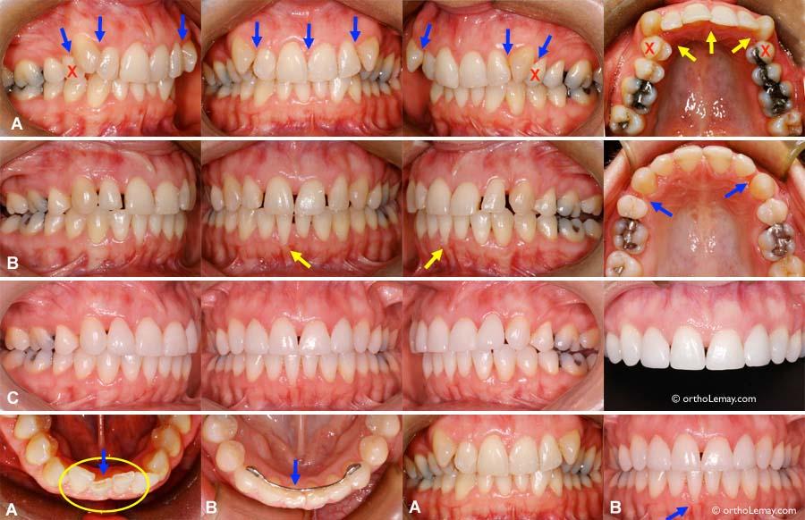 8e940996a7490 (B) Après les corrections orthodontique, les dents détournées mettent en  évidence le niveau plus bas des papilles gingivales.