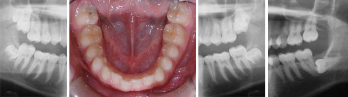 Wisdom teeth – Myths and realities | Bücco