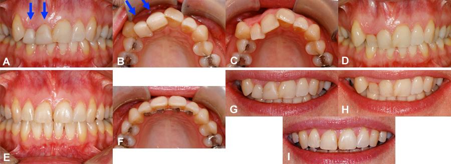 couronne dentaire trop haute
