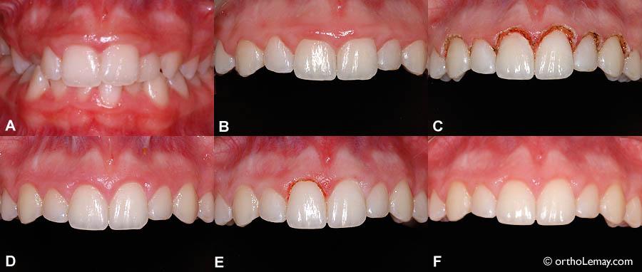 laser tissus mous en orthodontie gingivectomie esth tique b cco. Black Bedroom Furniture Sets. Home Design Ideas