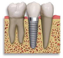 dents manquantes datant rencontre quelqu'un qui a un handicap