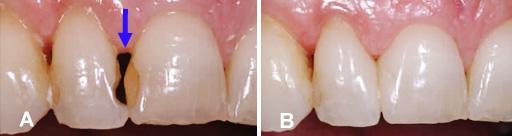 Restaurations Dentaires Et Esthétiques En Dentisterie Générale Bücco