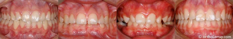 Fluorose Dentaire Et Autres Taches Bücco