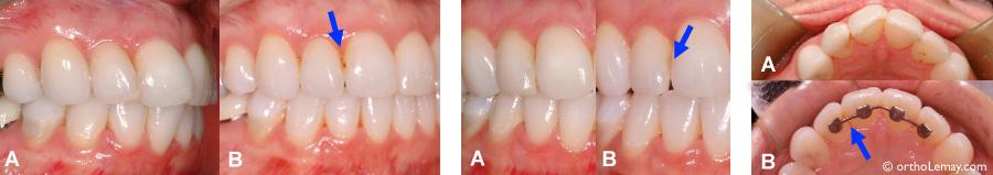 Comment Soigner Une Carie Sur Les Dents De Devant