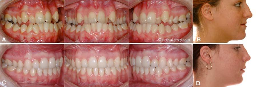 prix moyen traitement orthodontie