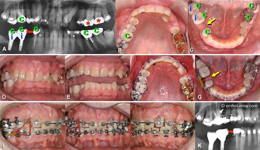 Solutions Esthetiques Pendant L Orthodontie Bucco