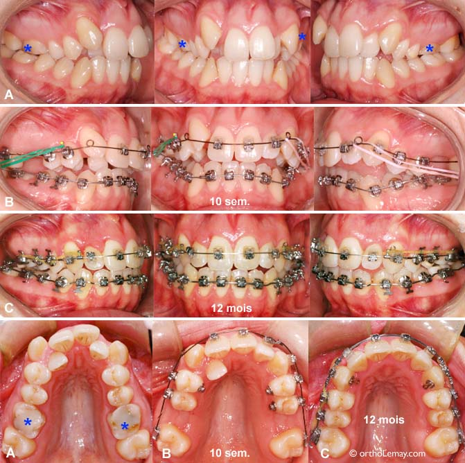 Bagues dentaires derriere les dents prix