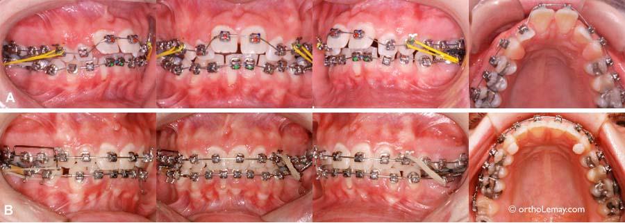 Bague dent combien de temps