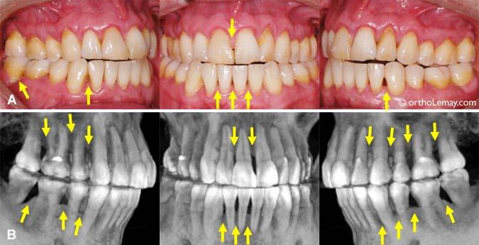 """dbd4465cfb018 (A) Cet adulte de 44 ans montre des papilles interdentaires fuyantes  (basses) et quelques espaces """"noirs"""" indiquant un manque de gencive entre  les dents (A) ..."""
