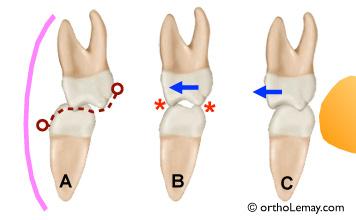 Correction d'une occlusion croisée postérieure à l'aide d'élastique orthodontique