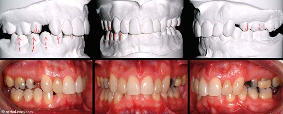 Les modèles d'étude et photographies offrent la meilleure représentation d'une dentition et sont essentiels dans la planification des traitements d'orthodontie.