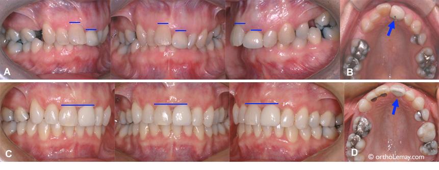 Mouvement orthodontiques pour améliorer le sourire