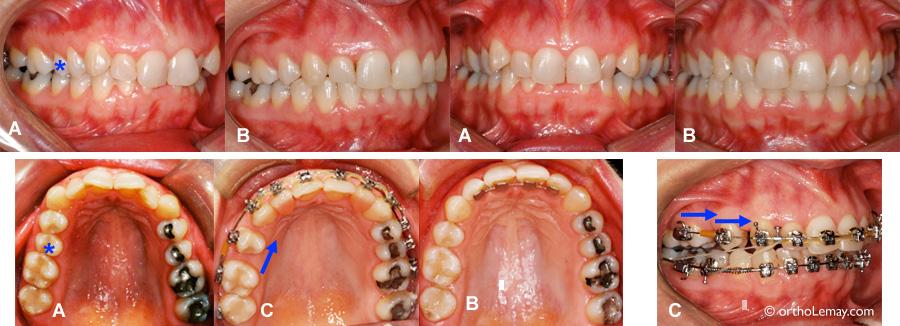 Fermeture d'espaces en orthodontie penant la prise de bisphosphonates