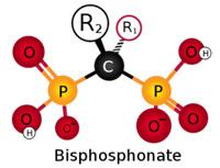 Bisphosphonates et orthodontie