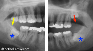 Dents de sagesse incluses radiographie panoramique