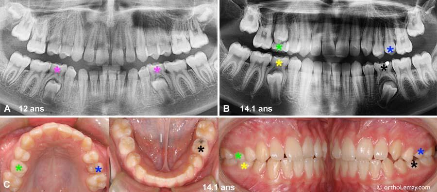 Exemples de dents temporaires (dents de lait) présentes en bouche au début du traitement d'orthodontie.