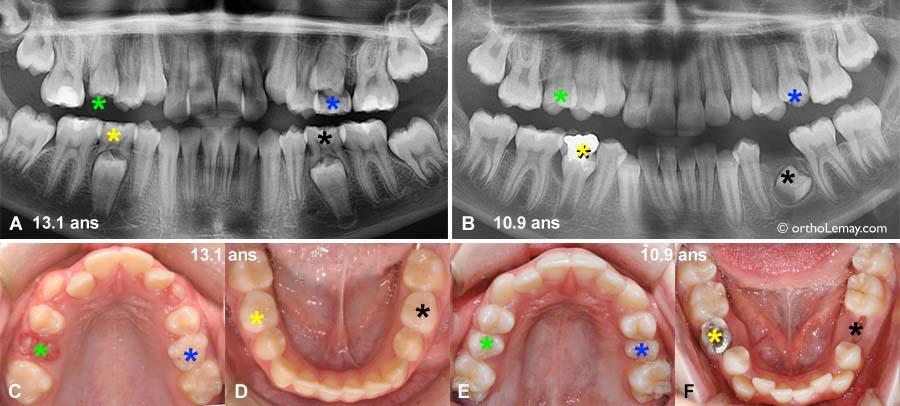 Exemple de situations où un traitement d'orthodontie pourrait être débuté même si des dents de lait (temporaires) sont enore en bouche.